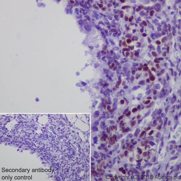 Immunohistochemistry (Formalin/PFA-fixed paraffin-embedded sections) - Anti-Steroidogenic Factor 1/SF-1 antibody [EPR19744] (ab217317)