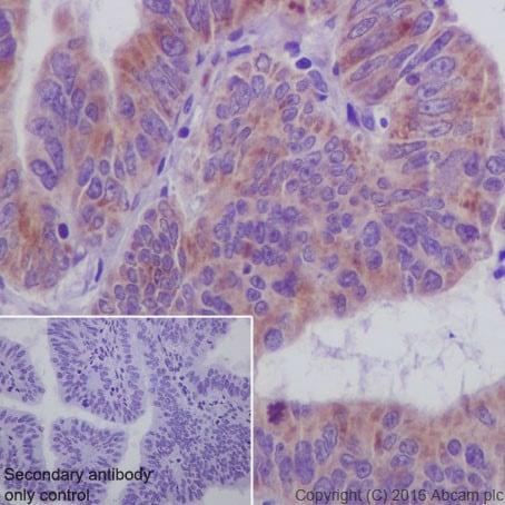 Immunohistochemistry (Formalin/PFA-fixed paraffin-embedded sections) - Anti-SIRT3 antibody [EPR19755] (ab217319)