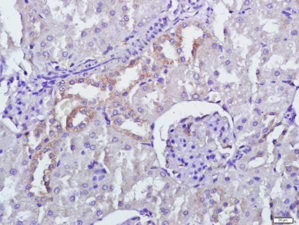 Immunohistochemistry (Formalin/PFA-fixed paraffin-embedded sections) - Anti-PERK antibody (ab217322)