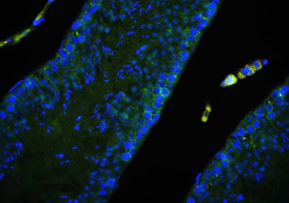 Immunohistochemistry (Formalin/PFA-fixed paraffin-embedded sections) - Anti-Gli1 antibody (ab217326)