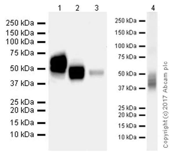 Western blot - Anti-CD63 antibody [EPR21151] (ab217345)