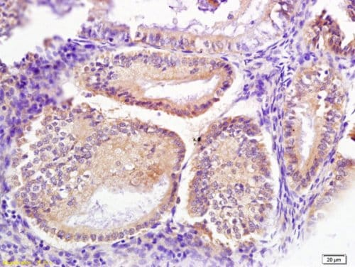 Immunohistochemistry (Formalin/PFA-fixed paraffin-embedded sections) - Anti-SRP68 antibody (ab217372)