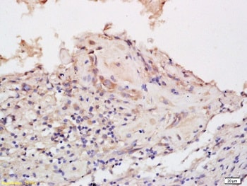 Immunohistochemistry (Formalin/PFA-fixed paraffin-embedded sections) - Anti-Eph receptor B6 antibody (ab217542)