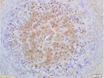 Immunohistochemistry (Formalin/PFA-fixed paraffin-embedded sections) - Anti-Smad2 + Smad3 antibody (ab217553)