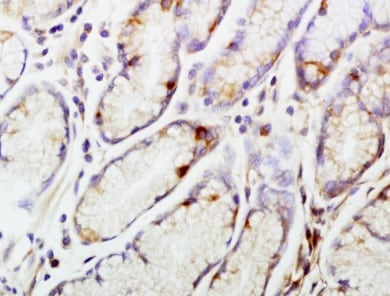 Immunohistochemistry (Formalin/PFA-fixed paraffin-embedded sections) - Anti-CENPA antibody (ab217622)