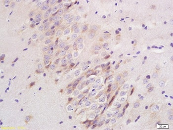 Immunohistochemistry (Formalin/PFA-fixed paraffin-embedded sections) - Anti-Plexin A1 antibody (ab217634)