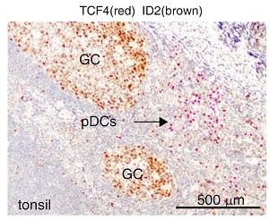 Immunohistochemistry - Anti-TCF-4 antibody [NCI-R159-6] (ab217668)