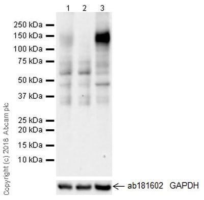 Western blot - Anti-CD130 (gp130) antibody [EPR21732] (ab217671)