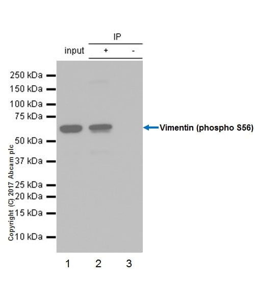 Immunoprecipitation - Anti-Vimentin (phospho S56) antibody [EPR21084] (ab217673)