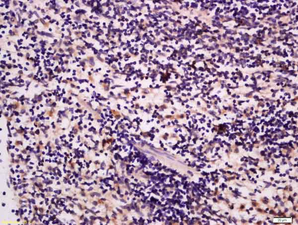 Immunohistochemistry (Formalin/PFA-fixed paraffin-embedded sections) - Anti-GRB10 antibody (ab217687)