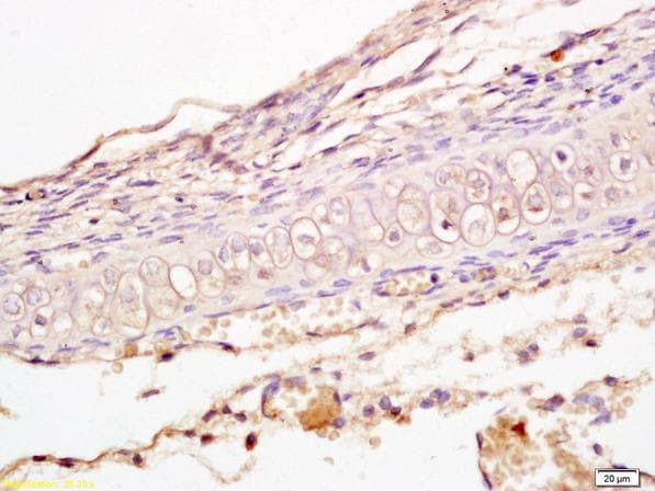 Immunohistochemistry (Formalin/PFA-fixed paraffin-embedded sections) - Anti-LRP5 + LRP6 antibody (ab217700)
