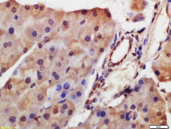 Immunohistochemistry (Formalin/PFA-fixed paraffin-embedded sections) - Anti-HDAC8 antibody (ab217702)