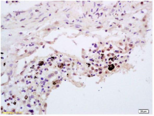Immunohistochemistry (Formalin/PFA-fixed paraffin-embedded sections) - Anti-TNFAIP3 antibody (ab217706)