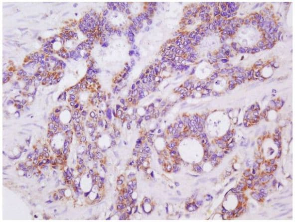 Immunohistochemistry (Formalin/PFA-fixed paraffin-embedded sections) - Anti-LGALS3BP antibody (ab217760)
