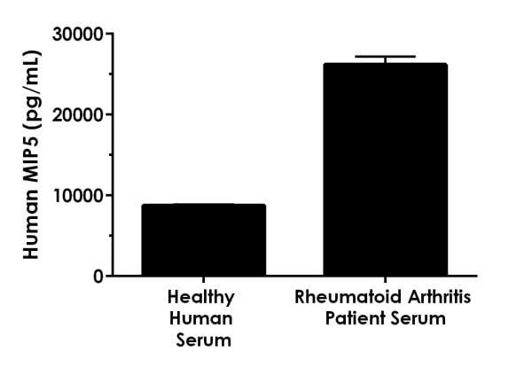 MIP5 is increased in serum of patients with rheumatoid arthritis.