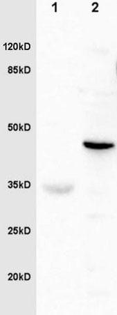 Western blot - Anti-Fibrinogen gamma chain antibody (ab217783)