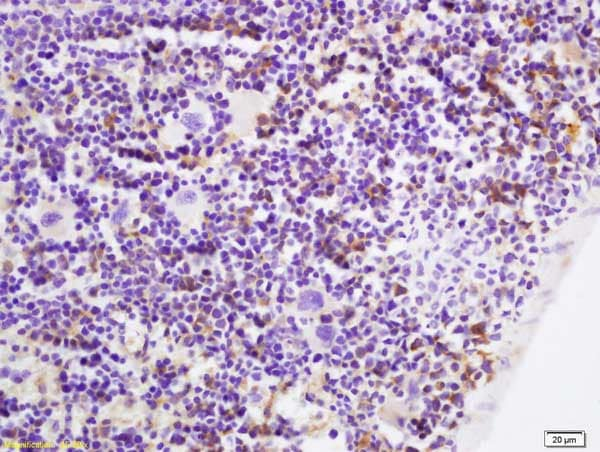 Immunohistochemistry (Formalin/PFA-fixed paraffin-embedded sections) - Anti-p53 AIP1 antibody (ab217785)