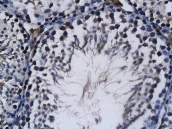 Immunohistochemistry (Formalin/PFA-fixed paraffin-embedded sections) - Anti-RNF43 antibody (ab217787)