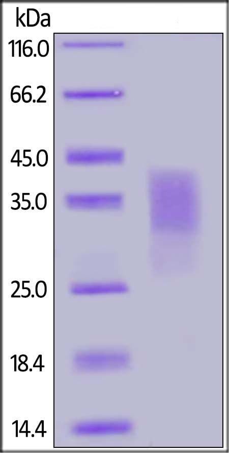 SDS-PAGE - Recombinant Human CD300C protein (His tag) (ab217819)