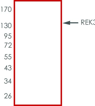 SDS-PAGE - Recombinant human MAPK6/ERK-3 protein (ab217835)