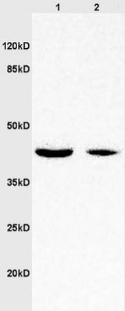 Western blot - Anti-Wnt7a antibody (ab217844)