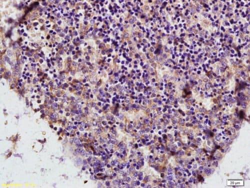 Immunohistochemistry (Formalin/PFA-fixed paraffin-embedded sections) - Anti-ADA antibody (ab217846)