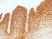 Immunohistochemistry (Formalin/PFA-fixed paraffin-embedded sections) - Anti-CD44v6 antibody [CD44v6/1246] (ab217902)