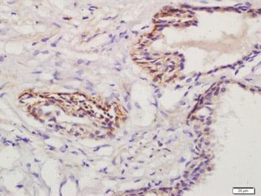 Immunohistochemistry (Formalin/PFA-fixed paraffin-embedded sections) - Anti-Prostaglandin E Receptor EP1/PTGER1 antibody (ab217925)