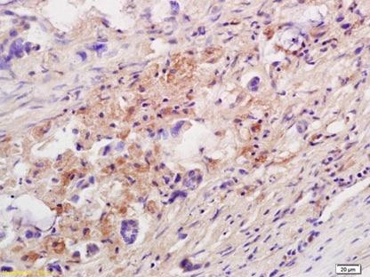 Immunohistochemistry (Formalin/PFA-fixed paraffin-embedded sections) - Anti-IL-10 antibody (ab217941)