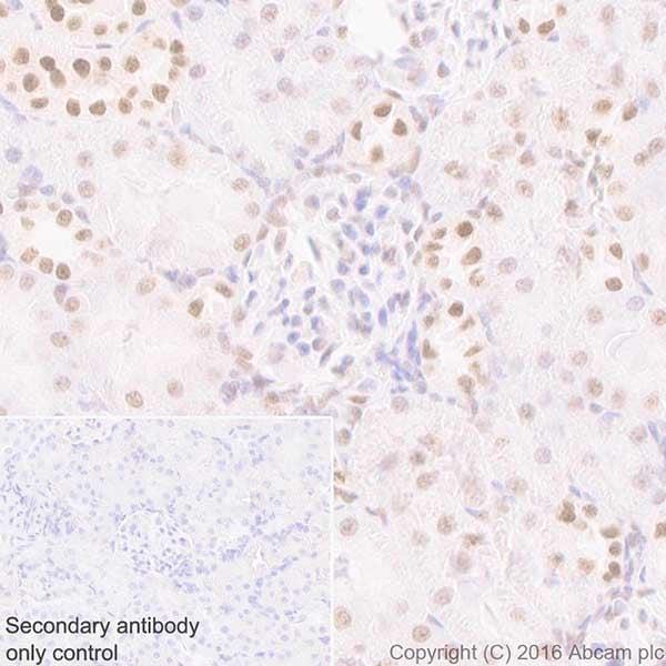 Immunohistochemistry (Formalin/PFA-fixed paraffin-embedded sections) - Anti-HP1 gamma/CBX3 antibody [EPR19802] (ab217999)