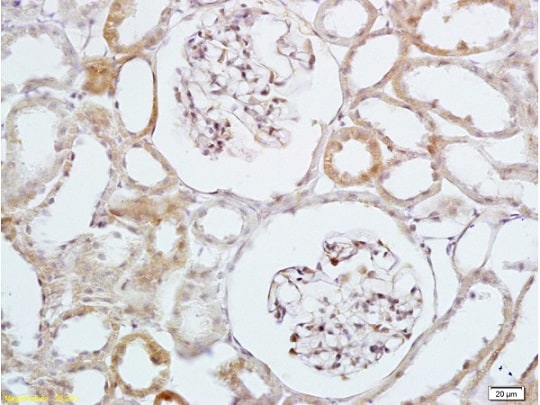 Immunohistochemistry (Formalin/PFA-fixed paraffin-embedded sections) - Anti-HBEGF/DTR antibody (ab218019)