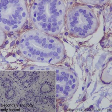 Immunohistochemistry (Formalin/PFA-fixed paraffin-embedded sections) - Anti-ROR2 antibody [EPR19980] (ab218105)