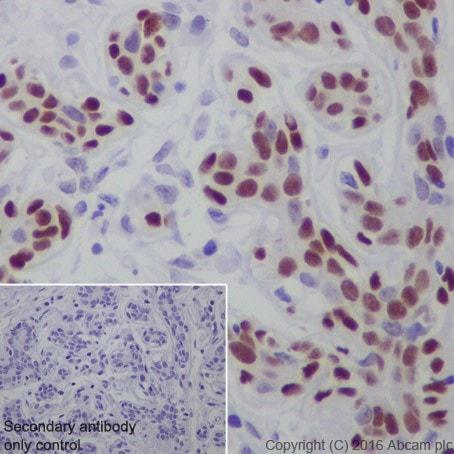 Immunohistochemistry (Formalin/PFA-fixed paraffin-embedded sections) - Anti-AP2 gamma/TFAP2C antibody [EPR20331] (ab218107)