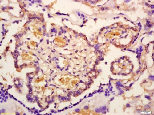 Immunohistochemistry (Formalin/PFA-fixed paraffin-embedded sections) - Anti-IRAK-1 (phospho T209) antibody (ab218130)