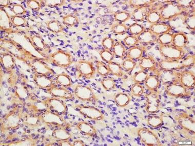 Immunohistochemistry (Formalin/PFA-fixed paraffin-embedded sections) - Anti-Fibroblast activation protein, alpha antibody (ab218164)