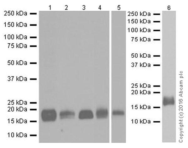 Western blot - Anti-Niemann Pick C2 antibody [EPR19993-145-1] (ab218192)