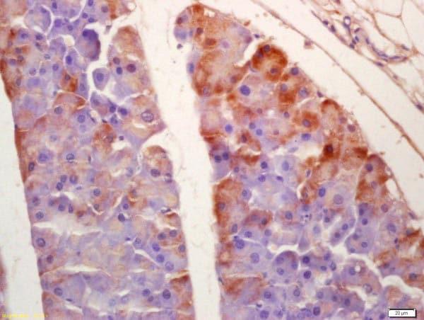 Immunohistochemistry (Formalin/PFA-fixed paraffin-embedded sections) - Anti-SGK3 antibody (ab218251)