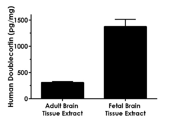 Doublecortin is highly expressed in neuronal cells of the fetal brain. Human adult brain tissue extract and human fetal brain tissue extract samples were analyzed based on a 300 µg/mL extract load.