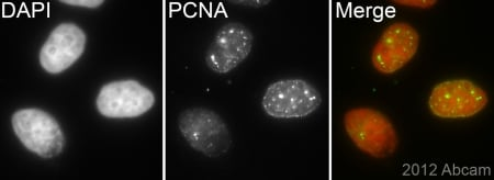 Immunocytochemistry/ Immunofluorescence - Anti-PCNA antibody [EPR3821] - BSA and Azide free (ab218310)