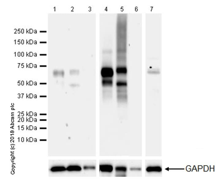 Western blot - Anti-2N Tau antibody [EPR21723] (ab218316)
