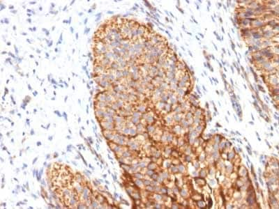 Immunohistochemistry (Formalin/PFA-fixed paraffin-embedded sections) - Anti-Thrombomodulin antibody [THBD/1591] (ab218327)