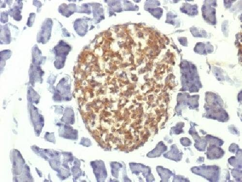 Immunohistochemistry (Formalin/PFA-fixed paraffin-embedded sections) - Anti-NSE antibody [ENO2/1375] (ab218388)