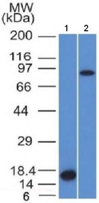 Western blot - Anti-Factor XIIIa antibody [F13A1/1448] (ab218392)