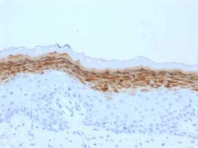 Immunohistochemistry (Formalin/PFA-fixed paraffin-embedded sections) - Anti-Filaggrin antibody [FLG/1561] (ab218395)
