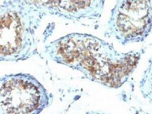 Immunohistochemistry (Formalin/PFA-fixed paraffin-embedded sections) - Anti-Interferon gamma antibody [IFNG/466] (ab218426)