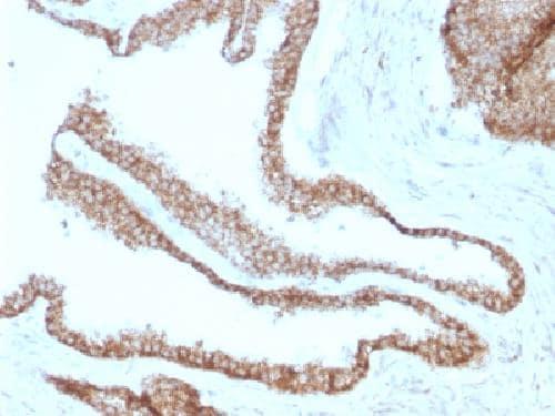 Immunohistochemistry (Formalin/PFA-fixed paraffin-embedded sections) - Anti-gamma Catenin antibody [CTNG/1664] (ab218437)