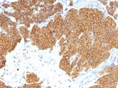 Immunohistochemistry (Formalin/PFA-fixed paraffin-embedded sections) - Anti-Parathyroid Hormone antibody [3H9] - N-terminal (ab218493)
