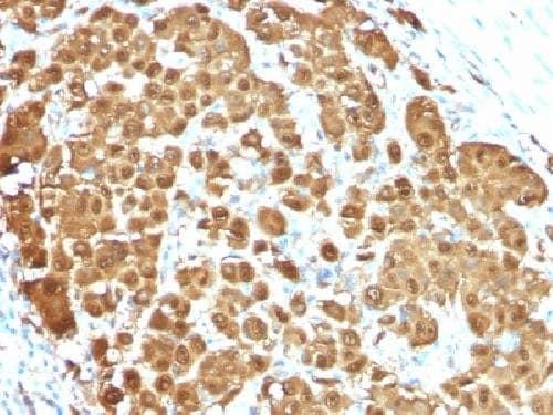 Immunohistochemistry (Formalin/PFA-fixed paraffin-embedded sections) - Anti-S100 beta antibody [S100B/1012] (ab218515)