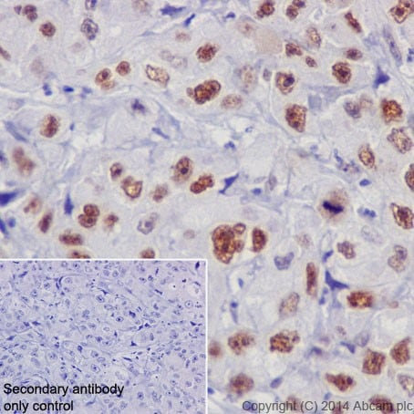 Immunohistochemistry (Formalin/PFA-fixed paraffin-embedded sections) - Anti-Rb antibody [EPR17512] - BSA and Azide free (ab218526)