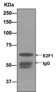 Immunoprecipitation - Anti-E2F1 antibody [EPR3818(3)] - BSA and Azide free (ab218527)